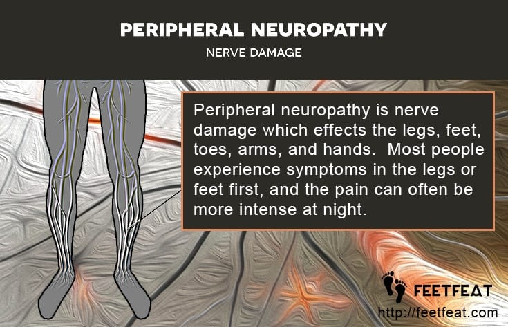 Peripheral Neuropathy Nerve Damage