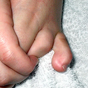 What is a Hammer Toe Small