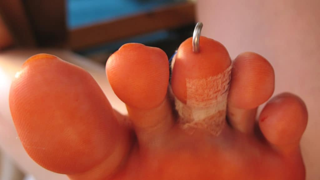 What is a Hammer Toe Surgery